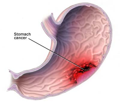 Stomach cancer treatment for dogs