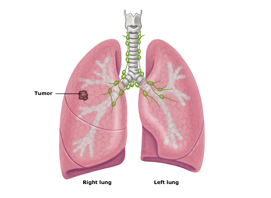fluid-in-lung-causes-cancer picture-symp